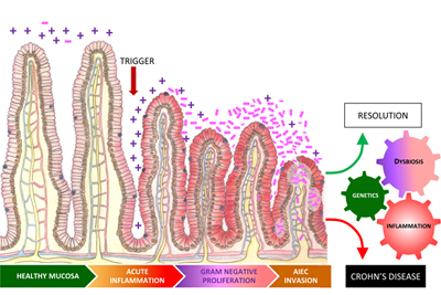 crohn s disease driven by inflammation not genetics reports study rh news cornell edu  crohn's disease diagram