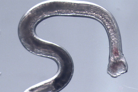 Hookworm genomic study holds promise for treatments