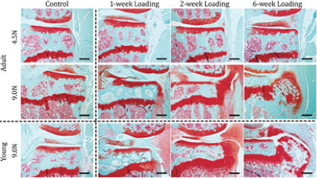 Histologic images show comparison of damage to cartilage