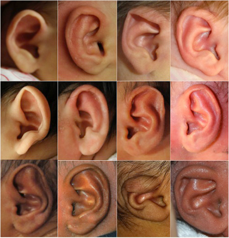before and after photos of infant ears