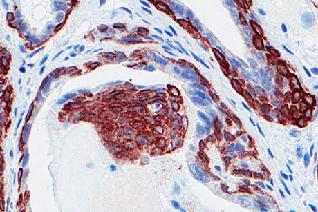 p53 cancer prostate