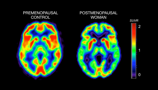 shows brain activity in a premenopausal woman; the scan to the right shows brain activity in a postmenopausal woman